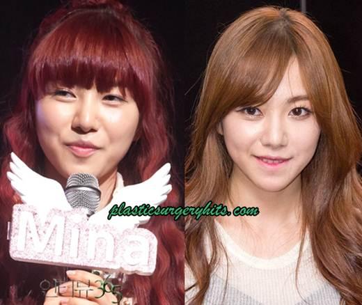 AOA-Kwon-Mina-Plastic-Surgery-Fact-or-Rumor
